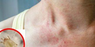 Alergi karena tungau debu