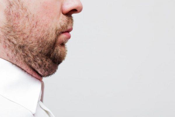 penyebab double chin